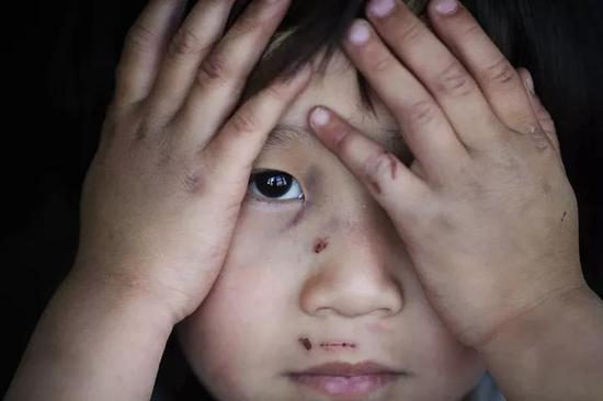 受到虐的的孩子